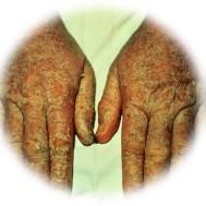 coolant solution dermatitis